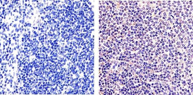 NFkB p50 Antibody (51-3500) in Immunohistochemistry (Paraffin)