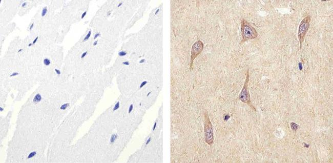 ALK Antibody (51-3900) in Immunohistochemistry (Paraffin)