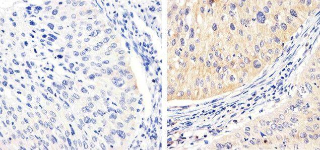 Phospho-FAK (Tyr576) Antibody (700013) in Immunohistochemistry (Paraffin)