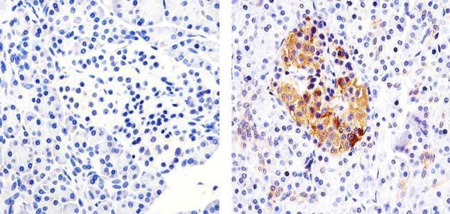 IRAK1 Antibody (700025) in Immunohistochemistry (Paraffin)