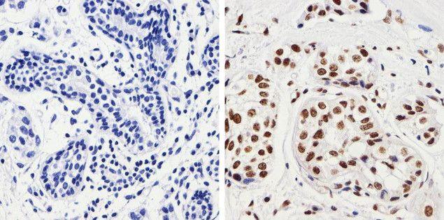 Phospho-JNK1/JNK2 (Thr183, Tyr185) Antibody (700031) in Immunohistochemistry (Paraffin)