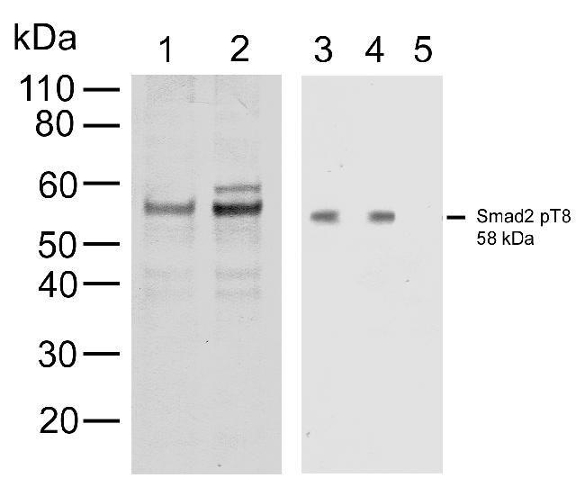 Phospho-SMAD2 (Thr8) Antibody (700050) in Western Blot