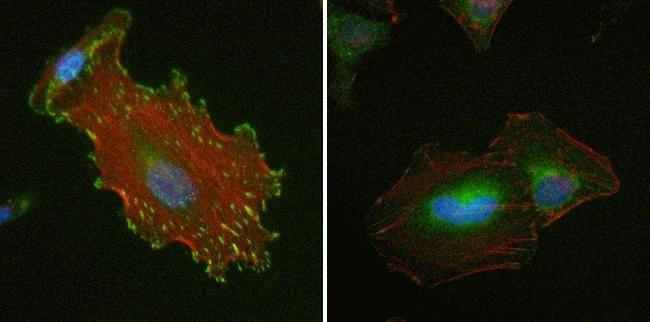 Vinculin Antibody (700062) in Immunofluorescence