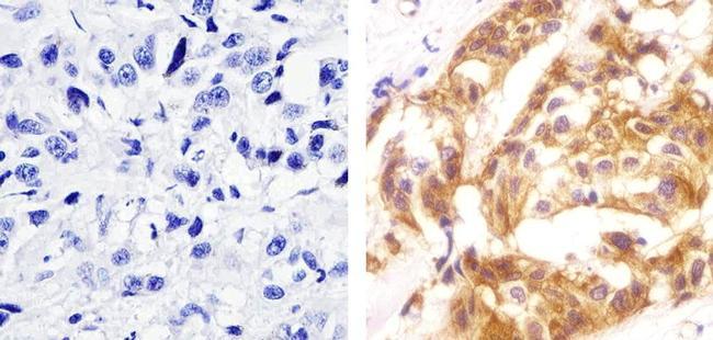 Phospho-c-Met (Tyr1230, Tyr1234, Tyr1235) Antibody (700139) in Immunohistochemistry (Paraffin)
