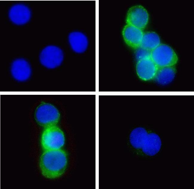 Phospho-ZAP70 (Tyr315, Tyr319) Antibody (700177) in Immunofluorescence