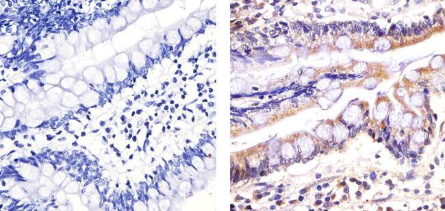 Caspase 3 Antibody (700182) in Immunohistochemistry (Paraffin)