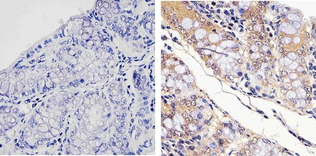 STAT4 Antibody (700185) in Immunohistochemistry (Paraffin)