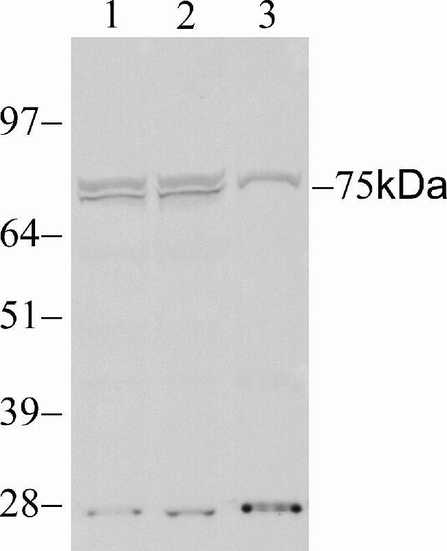 STAT4 Antibody (700185) in Western Blot