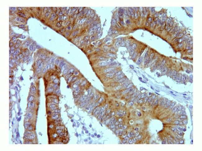 SUMO3 Antibody (700186) in Immunohistochemistry (Paraffin)