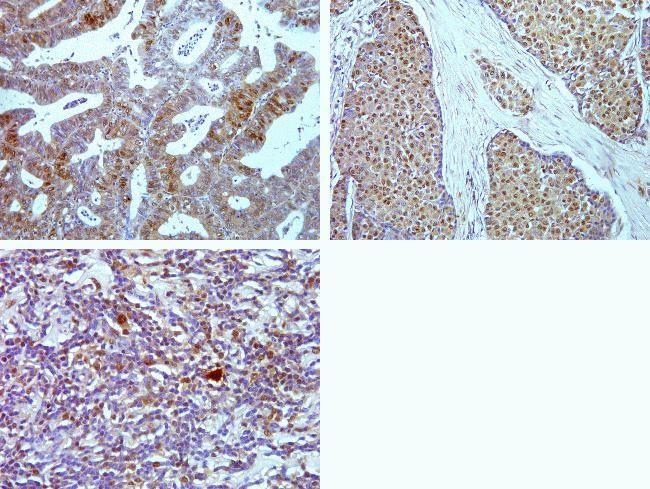 Phospho-4E-BP1 (Thr37) Antibody (700238) in Immunohistochemistry (Paraffin)