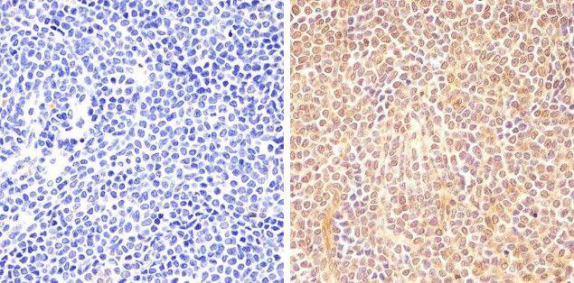 Phospho-STAT6 (Tyr641) Antibody (700247) in Immunohistochemistry (Paraffin)