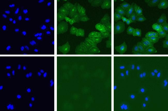 Met Antibody (700261)