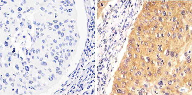 Phospho-STAT1 (Tyr701) Antibody (700349) in Immunohistochemistry (Paraffin)