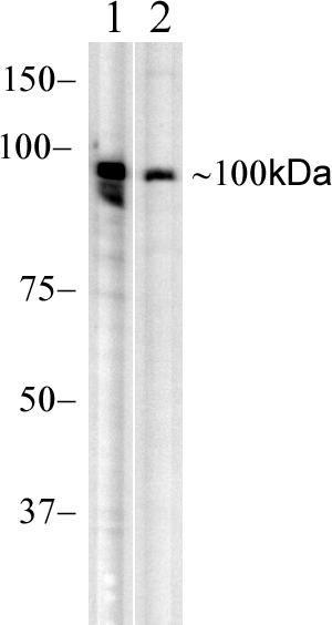 RIG-I Antibody (700366) in Western Blot