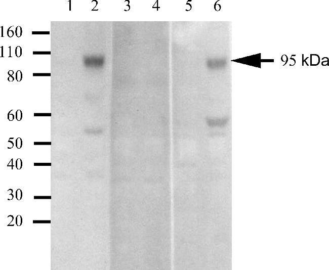 Phospho-IR/IGF1R (Tyr1162, Tyr1163) Antibody (700393)