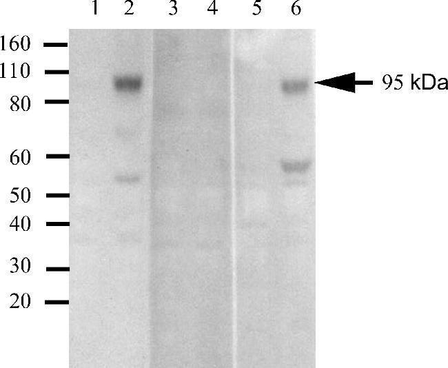 Phospho-IR/IGF1R (Tyr1162, Tyr1163) Antibody (700393) in Western Blot