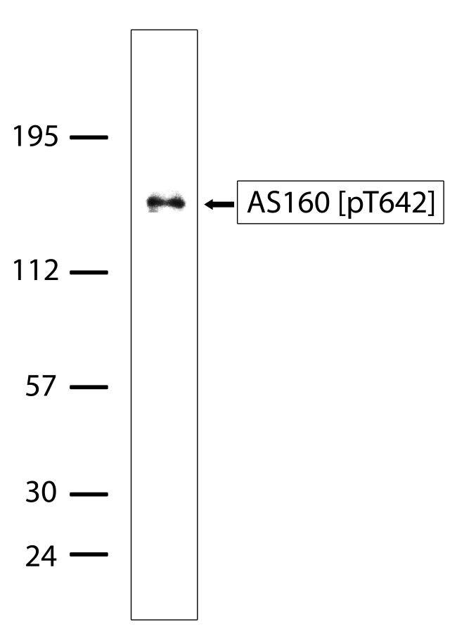 Phospho-AS160 (Thr642) Antibody (700565)