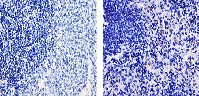 TARC Antibody (700655) in Immunohistochemistry (Paraffin)