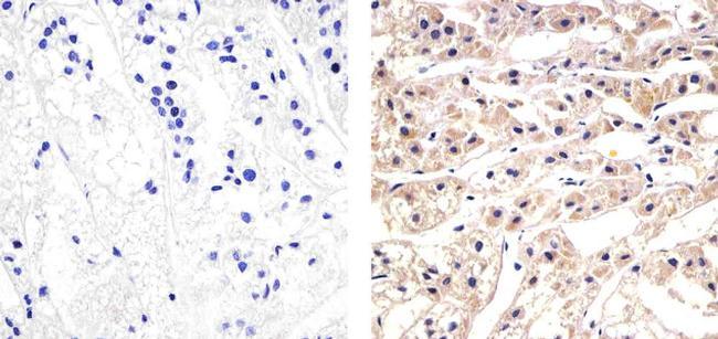 CXCL5 Antibody (700656) in Immunohistochemistry (Paraffin)