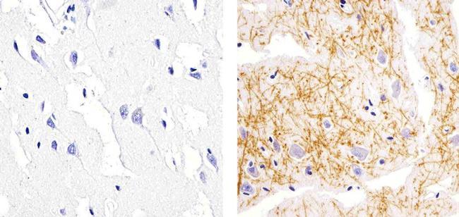 IRS1 Antibody (700662) in Immunohistochemistry (Paraffin)