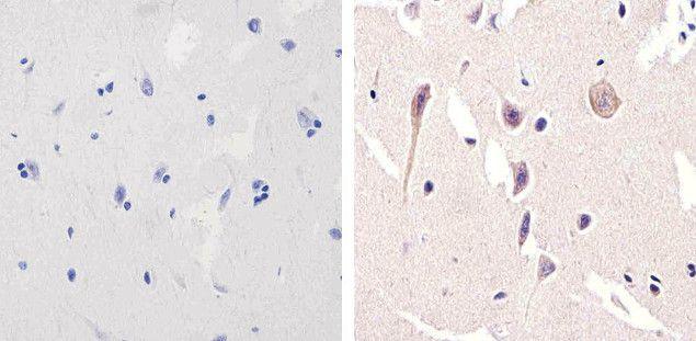 NMDAR1 Antibody (700685) in Immunohistochemistry (Paraffin)