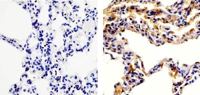RANTES Antibody (701030) in Immunohistochemistry (Paraffin)