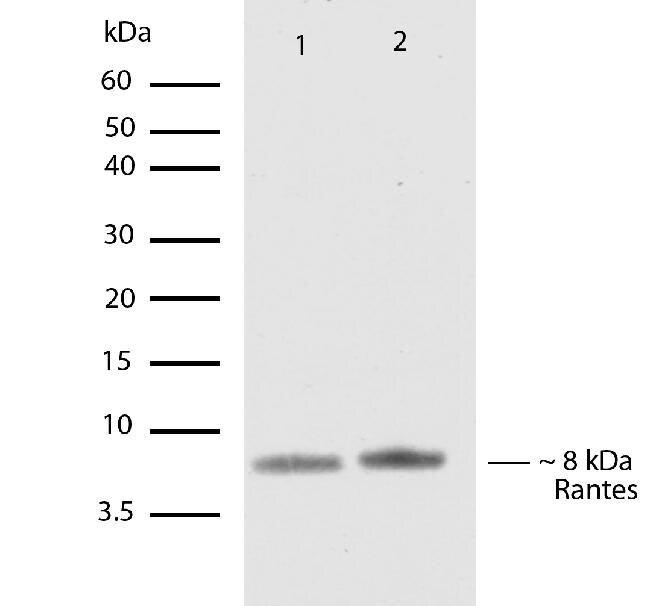 RANTES Antibody (701030) in Western Blot