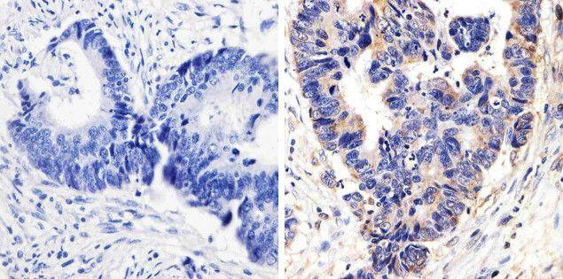 Phospho-p38 MAPK alpha (Thr180, Tyr182) Antibody (701057)