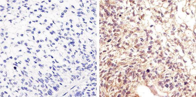 Phospho-STAT5 alpha (Tyr694) Antibody (701063) in Immunohistochemistry (Paraffin)