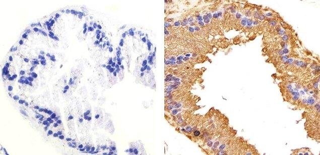 Phospho-GSK3 beta (Ser9) Antibody (701069) in Immunohistochemistry (Paraffin)