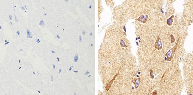 alpha Synuclein Antibody (701085) in Immunohistochemistry (Paraffin)