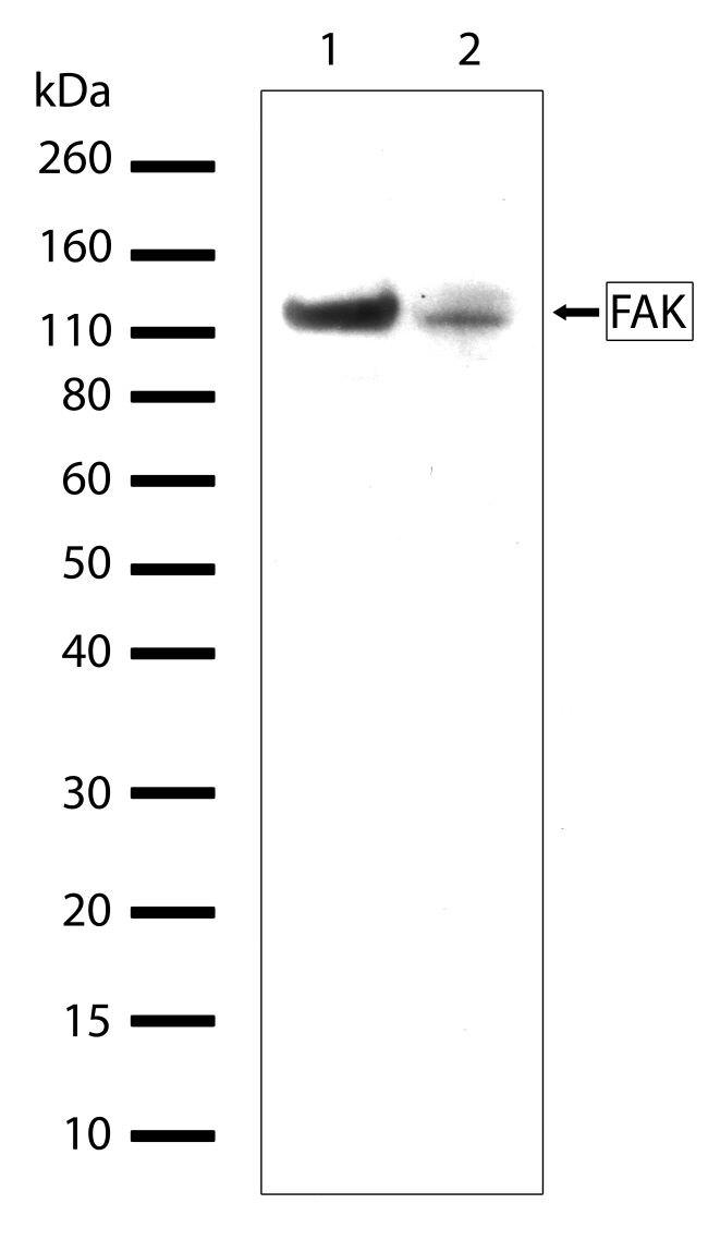FAK Antibody (701094) in Western Blot