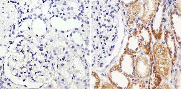 I-kappa-B-alpha Antibody (701098)