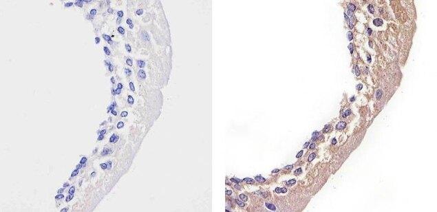 STAT2 Antibody (701105) in Immunohistochemistry (Paraffin)