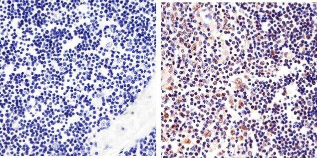 STAT6 Antibody (701110) in Immunohistochemistry (Paraffin)