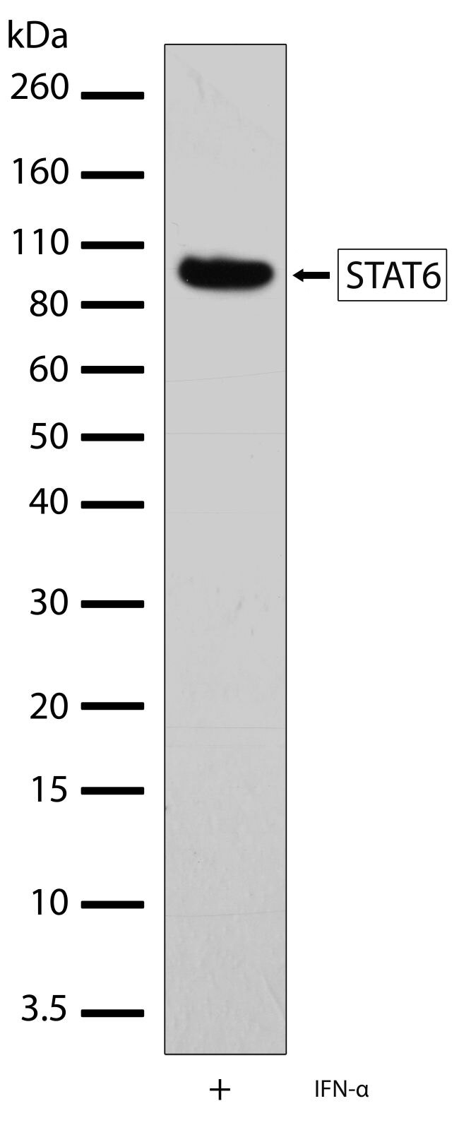 STAT6 Antibody (701110) in Western Blot