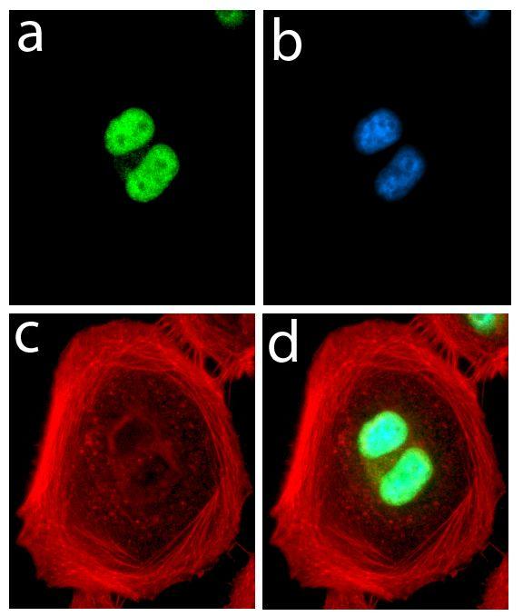 FABP4 Antibody (701158) in Immunofluorescence