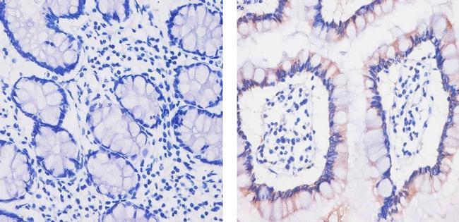 MCP-2 Antibody (701174)