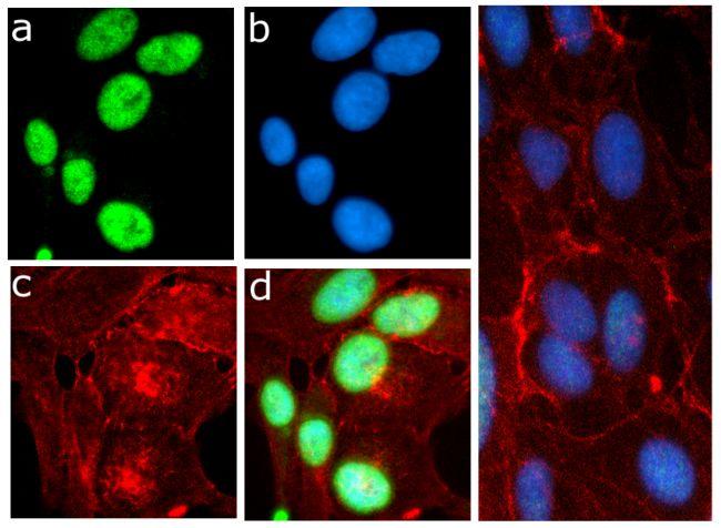 Phospho-eIF2a (Ser51) Antibody (701268) in Immunofluorescence