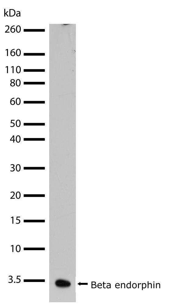 Beta Endorphin Antibody (701295)