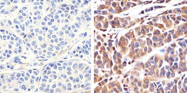 S100B Antibody (701340) in Immunohistochemistry (Paraffin)