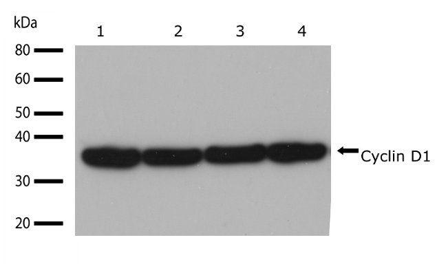 Cyclin D1 Antibody (701421) in Western Blot