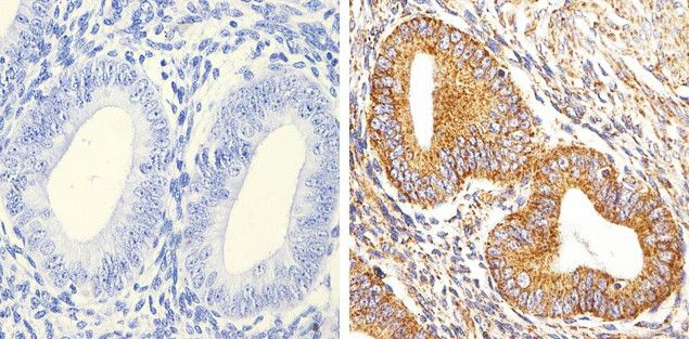 smooth muscle actin antibody (monoclonal, 17h19l35), Muscles