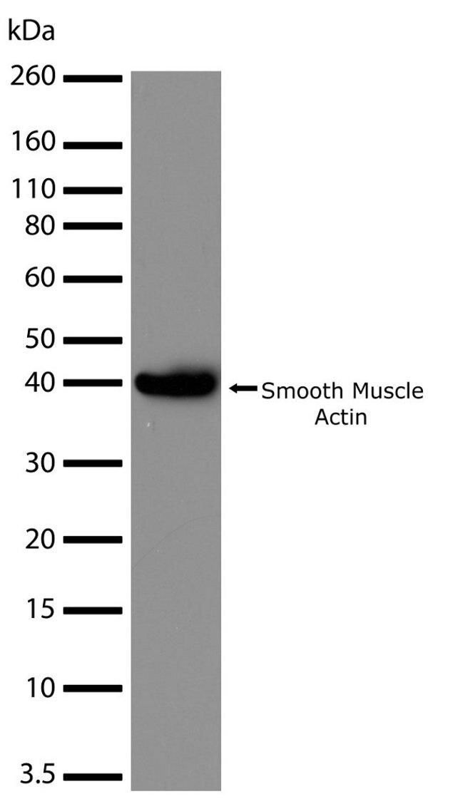 Smooth Muscle Actin Antibody (701457) in Western Blot