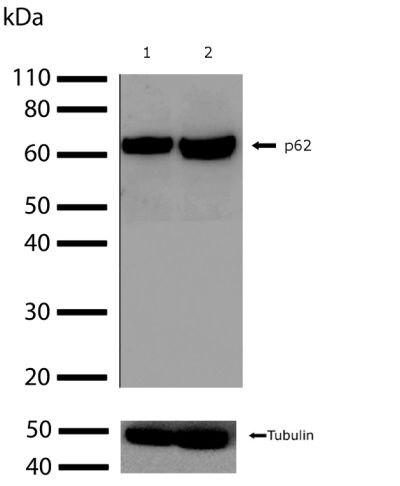 SQSTM1 Antibody (701510) in Western Blot