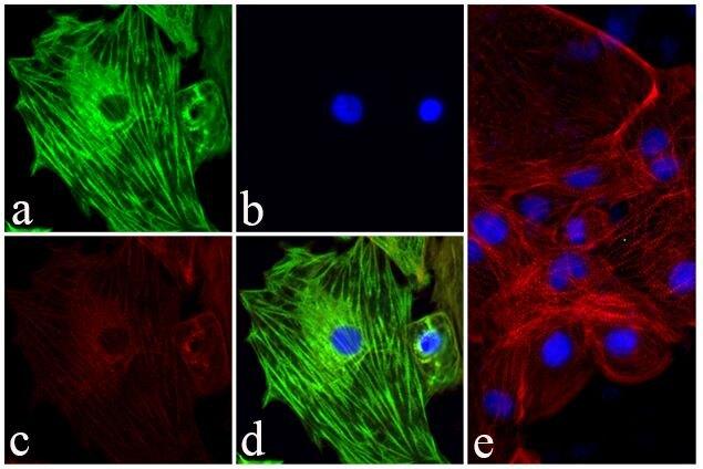 Troponin I Antibody (701585) in Immunofluorescence