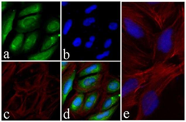 AKT1 Antibody (710005) in Immunofluorescence