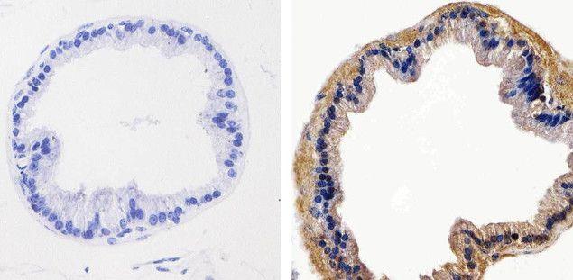 AKT1 Antibody (710005) in Immunohistochemistry (Paraffin)