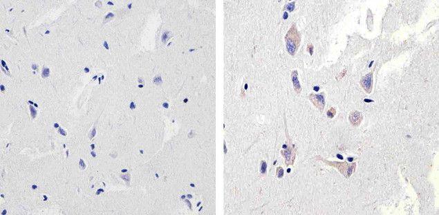 NMDAR1 Antibody (710020) in Immunohistochemistry (Paraffin)