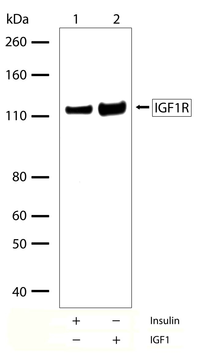 IGF1R beta Antibody (710065)